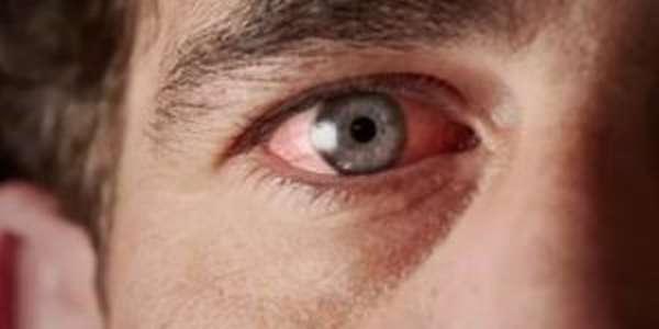 Первая помощь при ожоге глаз от сварки: что можно и нельзя делать
