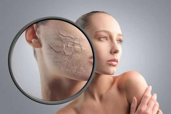 Сухость и трещины на коже – последствия недостаточной влажности воздуха